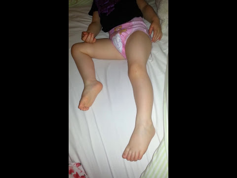 Myoclonic epilepsy seizure at night?
