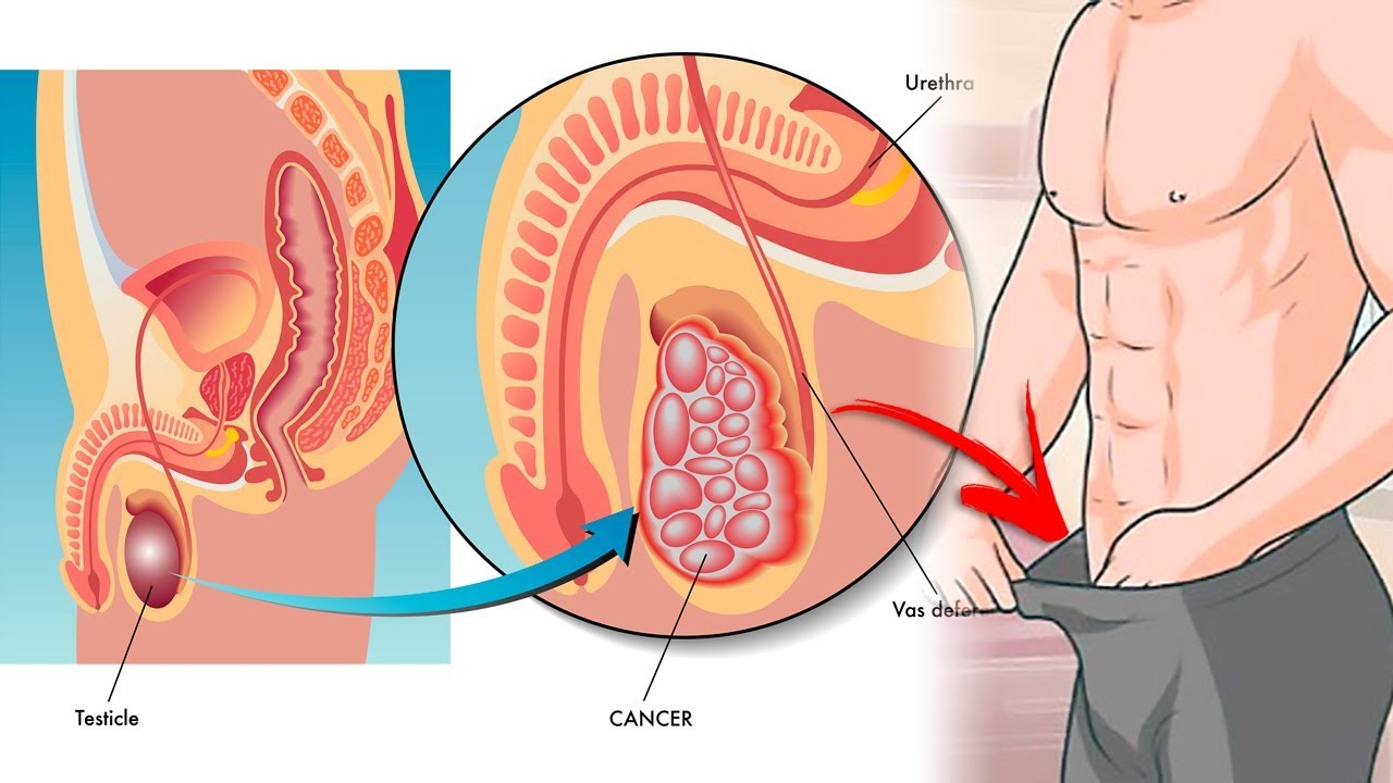hight resolution of prostate cancer diagram