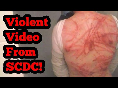 Disturbing Images From South Carolina Department of Corrections! (Part 1)