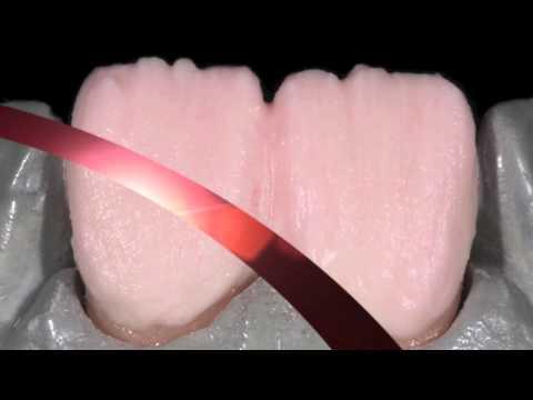 Informationen zum Dental Keramik Schichtkurs auf Zirkon.mov