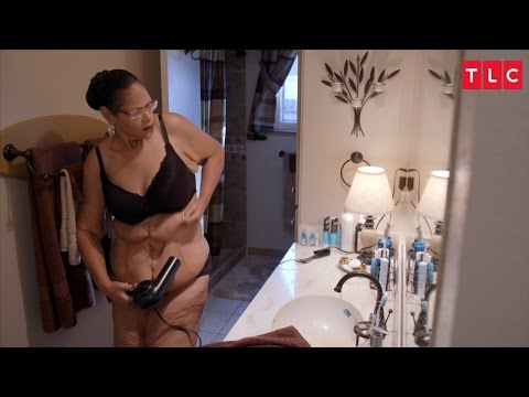 After Losing Over 400 Pounds, Can This Mom Rid Herself Of Her Excess Skin?