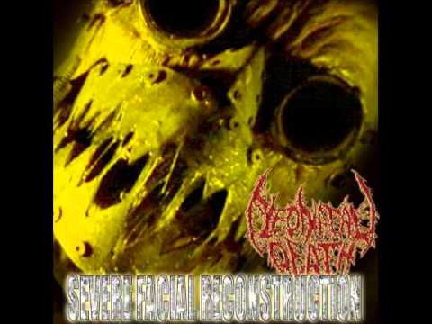 Neonatal Death - Severe Facial Reconstruction [Full Album]