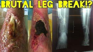 Worst Leg BREAK Ever
