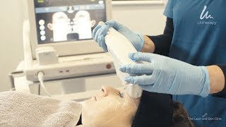 ULTHERAPY - the amazing non-surgical skin lifting treatment