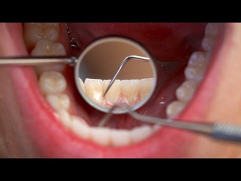 How Many Teeth Should Adults Have? | Tooth Care