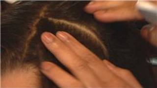 African American Hair Care : How to Care for Dandruff in African American Hair
