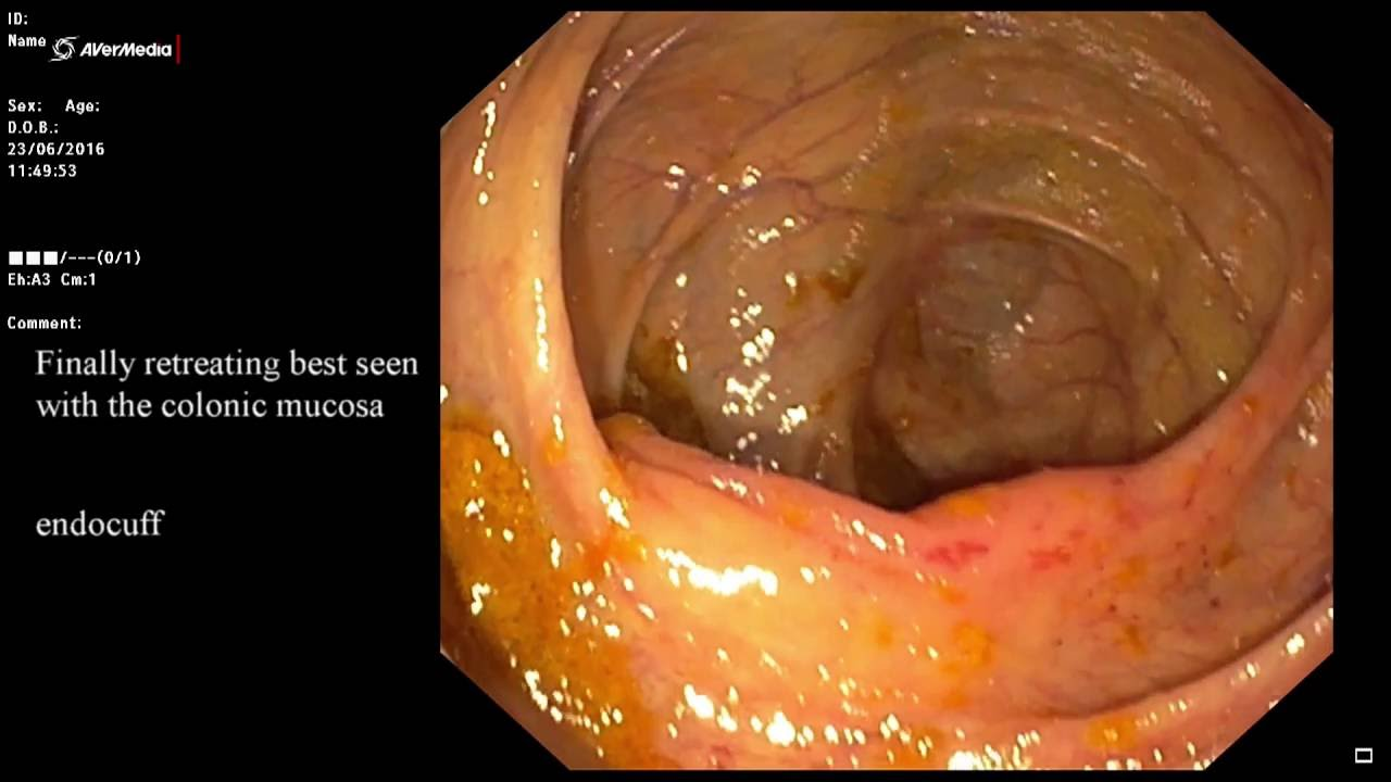 Endocuff Utility For Intubation Ileocecal Valve Youtube