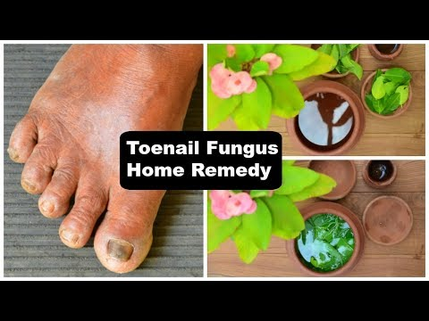 Treat Toenail Fungus Naturally & Instantly By Soaking Your Feet In This !!!