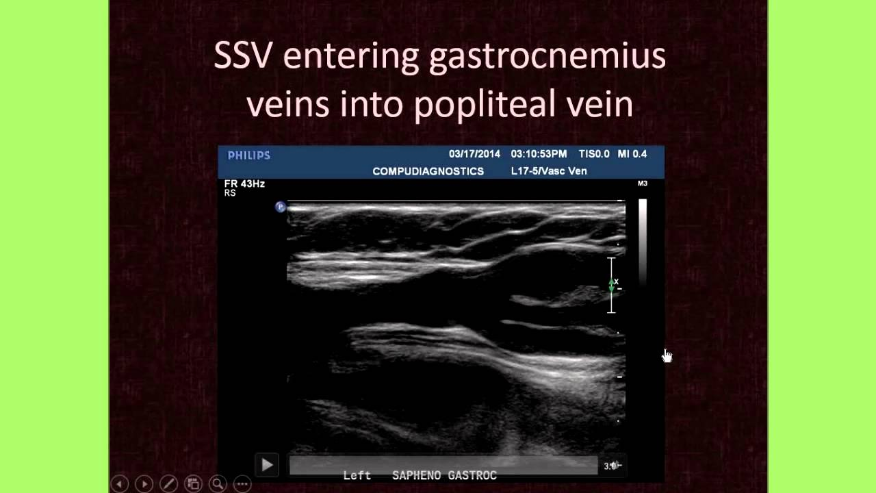 The Importance of Venous Anatomy for the Reflux Ultrasound ...