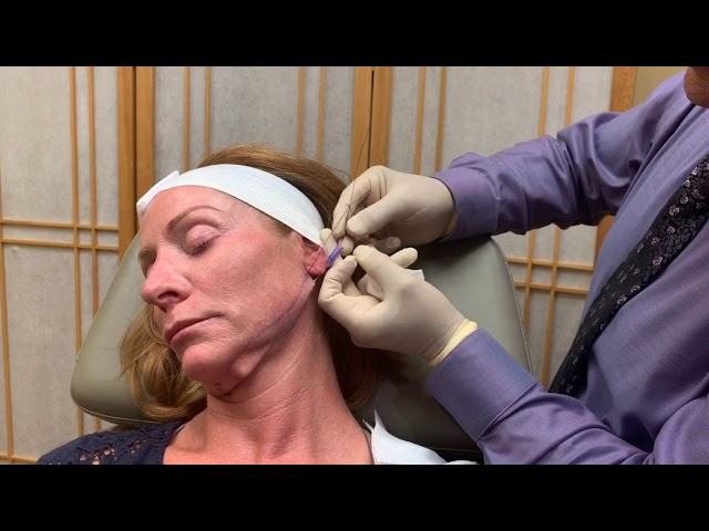 Non-Invasive Facelift with MINT