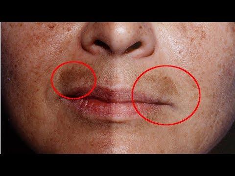 ПОЧЕМУ появляются пятна на лице? Простой ответ - из-за того что