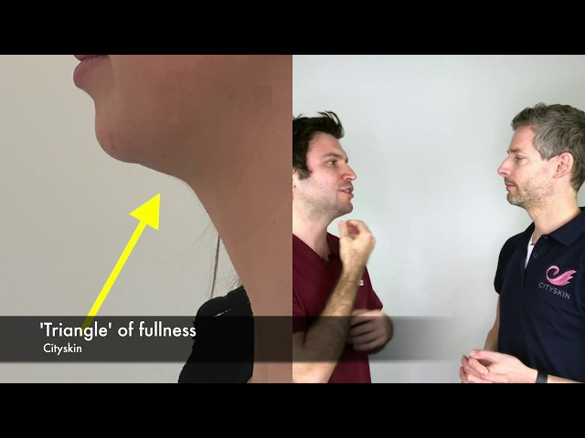 Lessons learnt from 18 months of double chin treament | Cityskin Clinic
