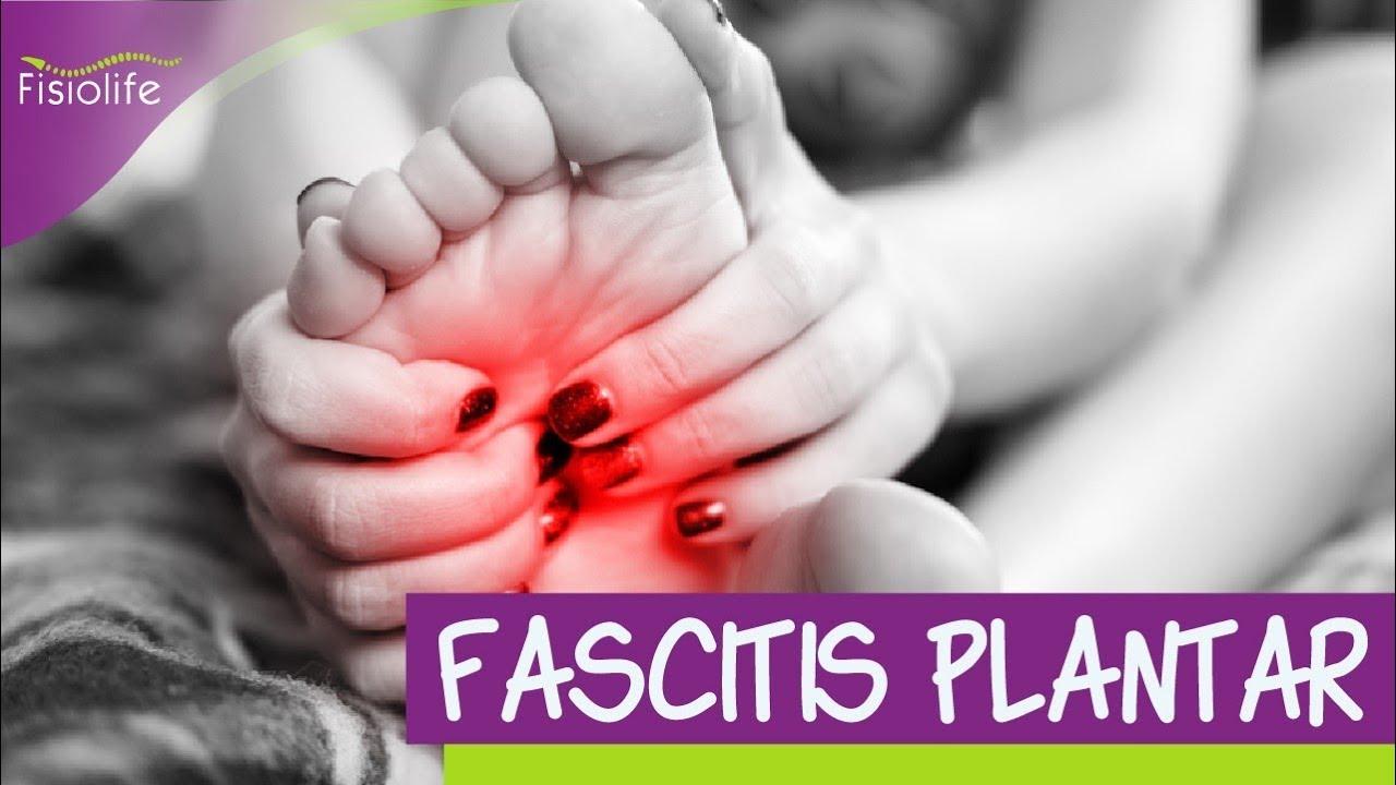 FASCITIS PLANTAR Diagnostico tratamiento y consejos  FISIOLIFE💪👩⚕️