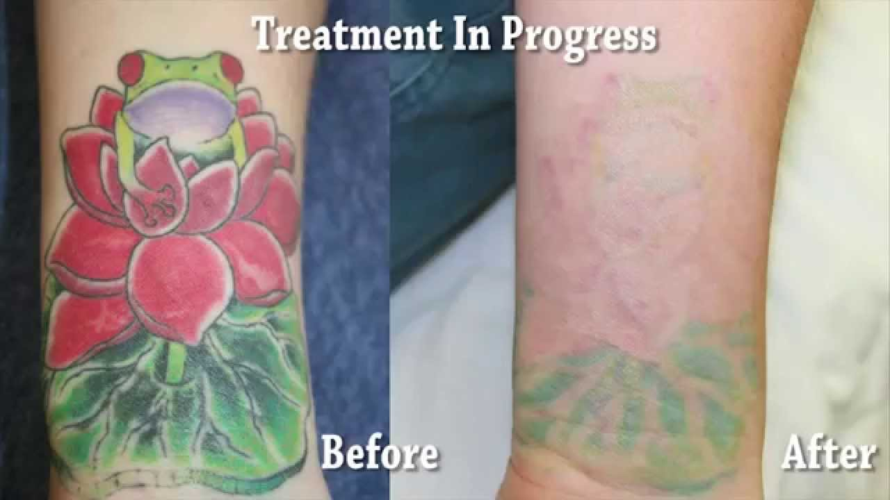 Orange County Tattoo Removal Results