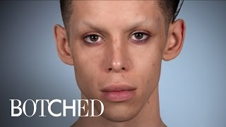 "Botched | Vinny Wants to Become the ""Perfect Alien"" 