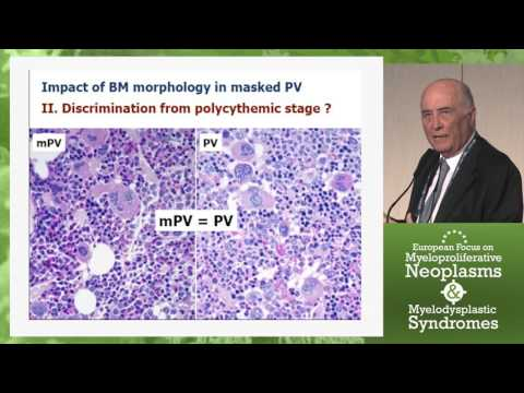 The WHO Updated Diagnostic Criteria for MPN
