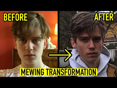 8 MONTH MEWING TRANSFORMATION VIDEO | 19 YEARS OLD BEFORE AND AFTER