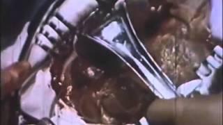 Холецистэктомия удаление желчного пузыря