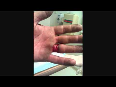 Wedding Ring Injury Scissor Lift Almost Lose A Finger Youtube