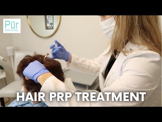HAIR PRP TREATMENT | What is Platelet-Rich Plasma (PRP) Hair Restoration? | PUR Skin Clinic