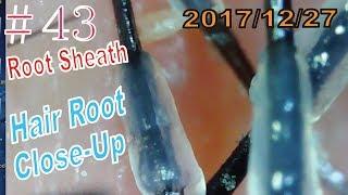 Hair Root / Root Sheath Close Up #43【Many Root Sheath】