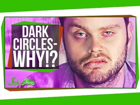 Why Do I Get Dark Circles Under My Eyes?