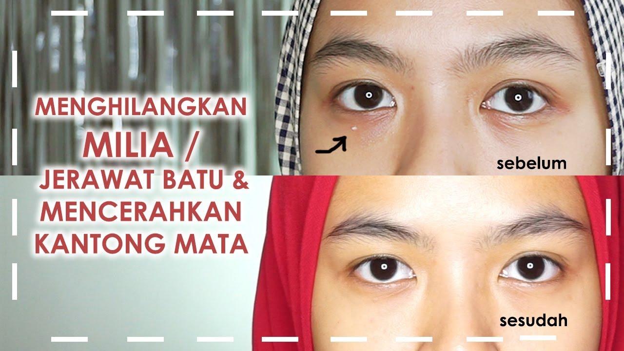 Cara Menghilangkan Milia Jerawat Batu Mencerahkan Kantung Mata Avoskin Intensive Eye Cream Youtube
