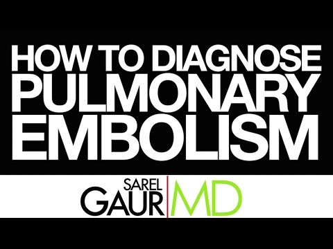 How to Read a CT Pulmonary Angiogram Part II:  How to Diagnose a Pulmonary Embolism