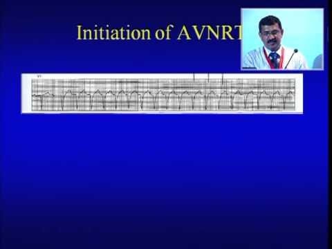 Narrow QRS Tachycardia - Dr H Prabhakar MD DM 29.09.2013 06