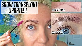 Eyebrow hair transplant update!! BEFORE/AFTER pics 5 months post op...