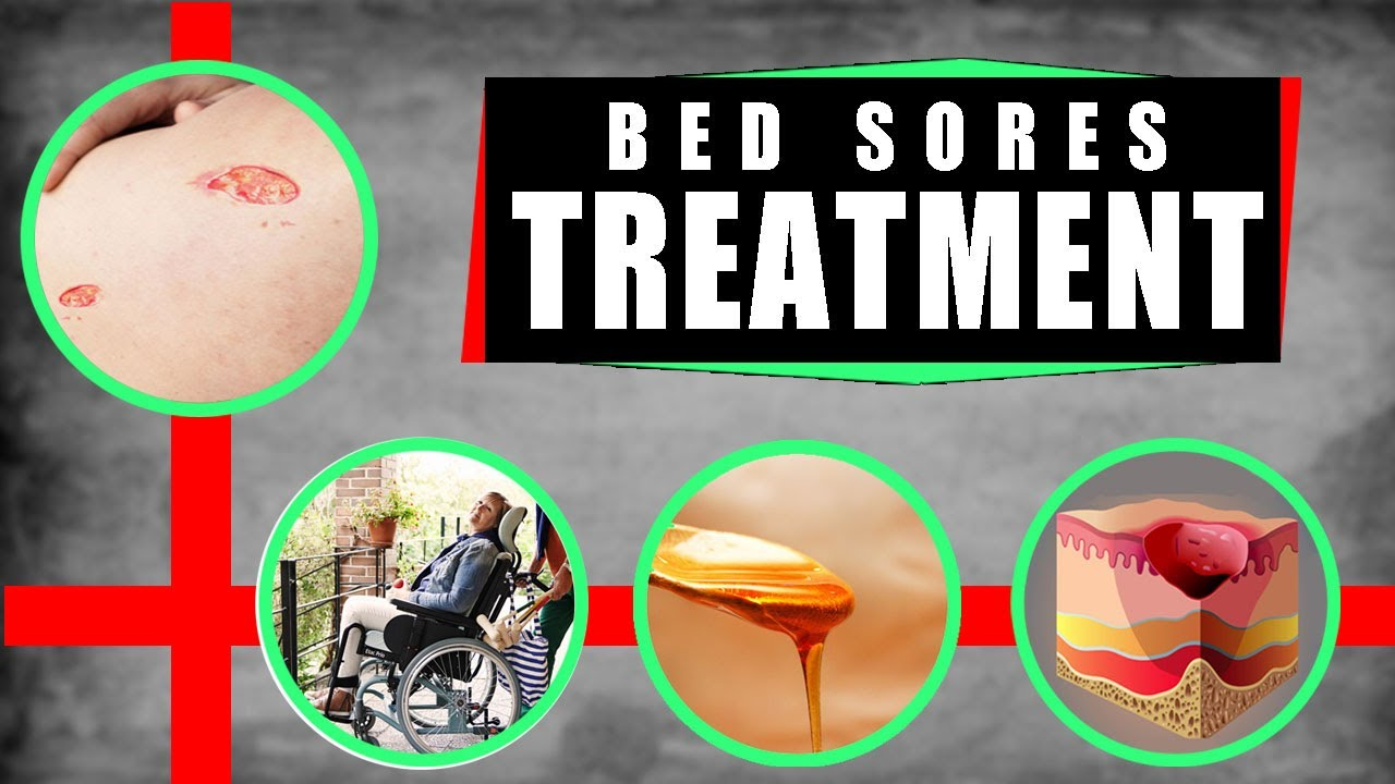 decubitis treatment bed sores ulcer pressure