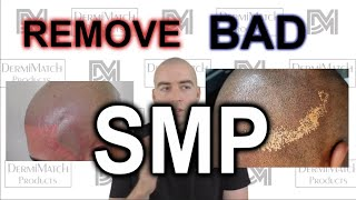 Remove Bad Smp  How To  - See Description Below To Skip Ahead