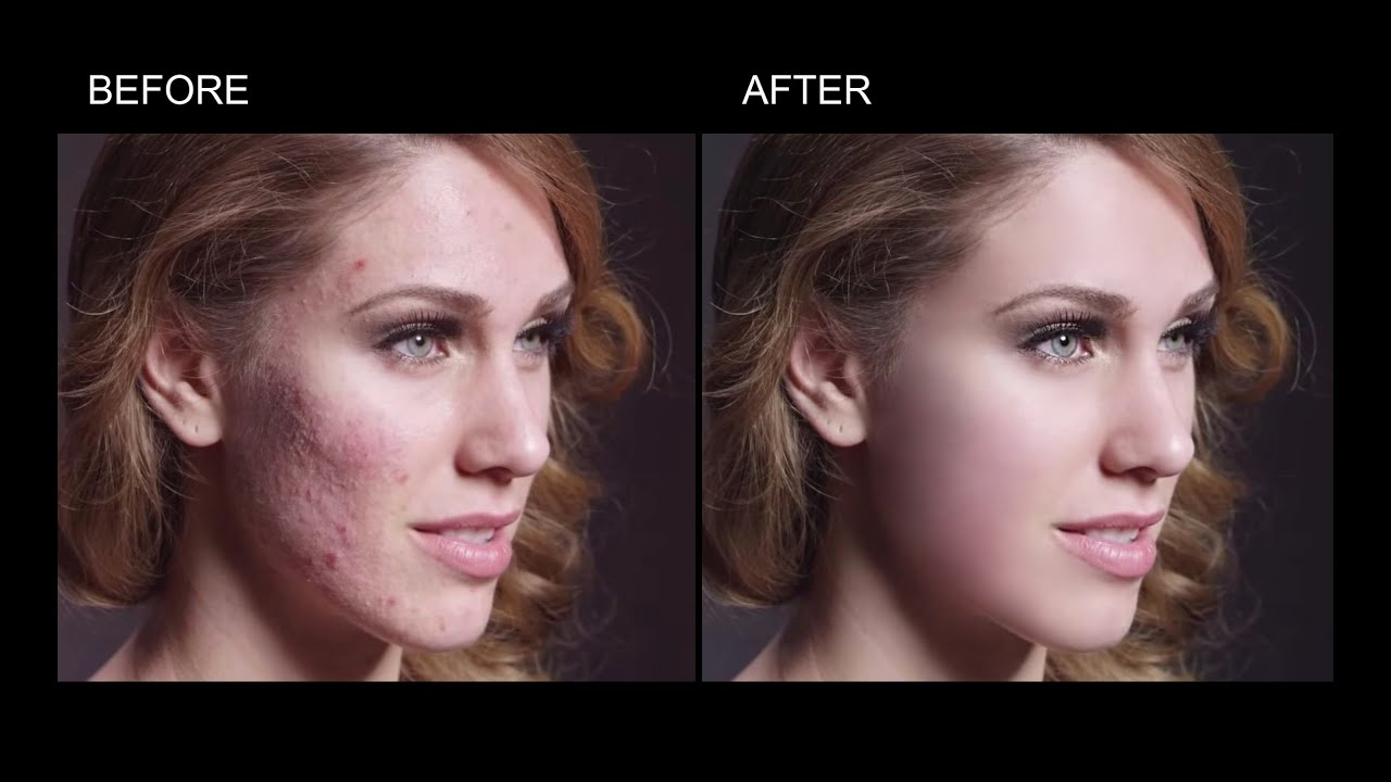 Photoshop tutorial how to remove acne and smooth skin in adobe photoshop tutorial how to remove acne and smooth skin in adobe photoshop youtube baditri Choice Image
