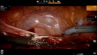 Robotic Hysterectomy: Keep Your Ovaries and Your Cervix