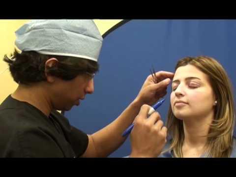 Eyelid Surgery - Eyelift - Before & After (Amiya Prasad MD)