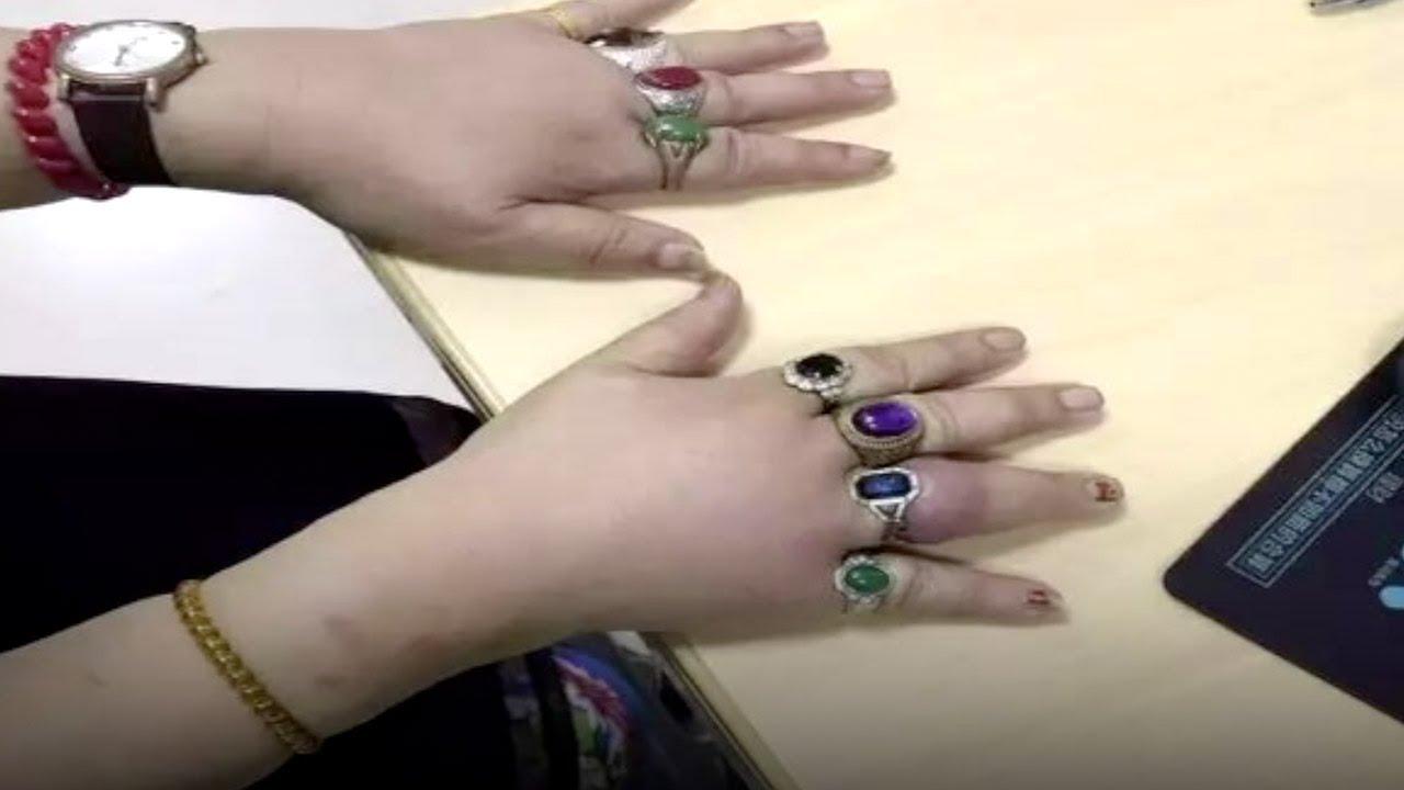 Firefighters cut rings from Shanghai womans seven swollen fingers