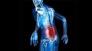 видео Боль в мышцах после тренировки