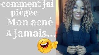 STORY TIME Comment j'ai piegée mon acné à Jamais...#acné |Sarah Angeli