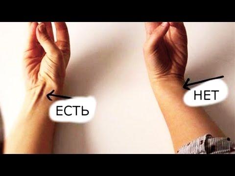 Киста копчика – причины, симптомы, лечение, операция