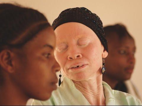 Tanzania Albinism Collective Mini-Documentary