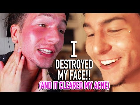I DESTROYED MY SKIN! (It cured my acne scars)