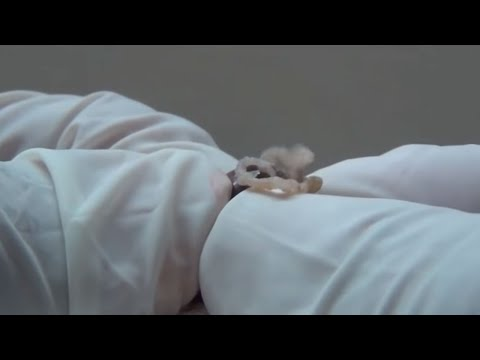 Skin Peeling Scab Removal Doornob Size Cysts Bizarre Medical Youtube