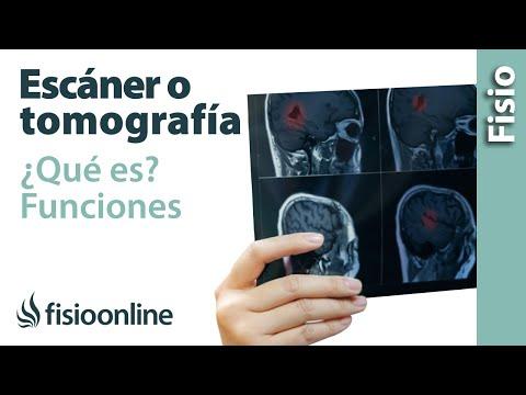 Escáner o tomografía. Qué es y cómo funciona.