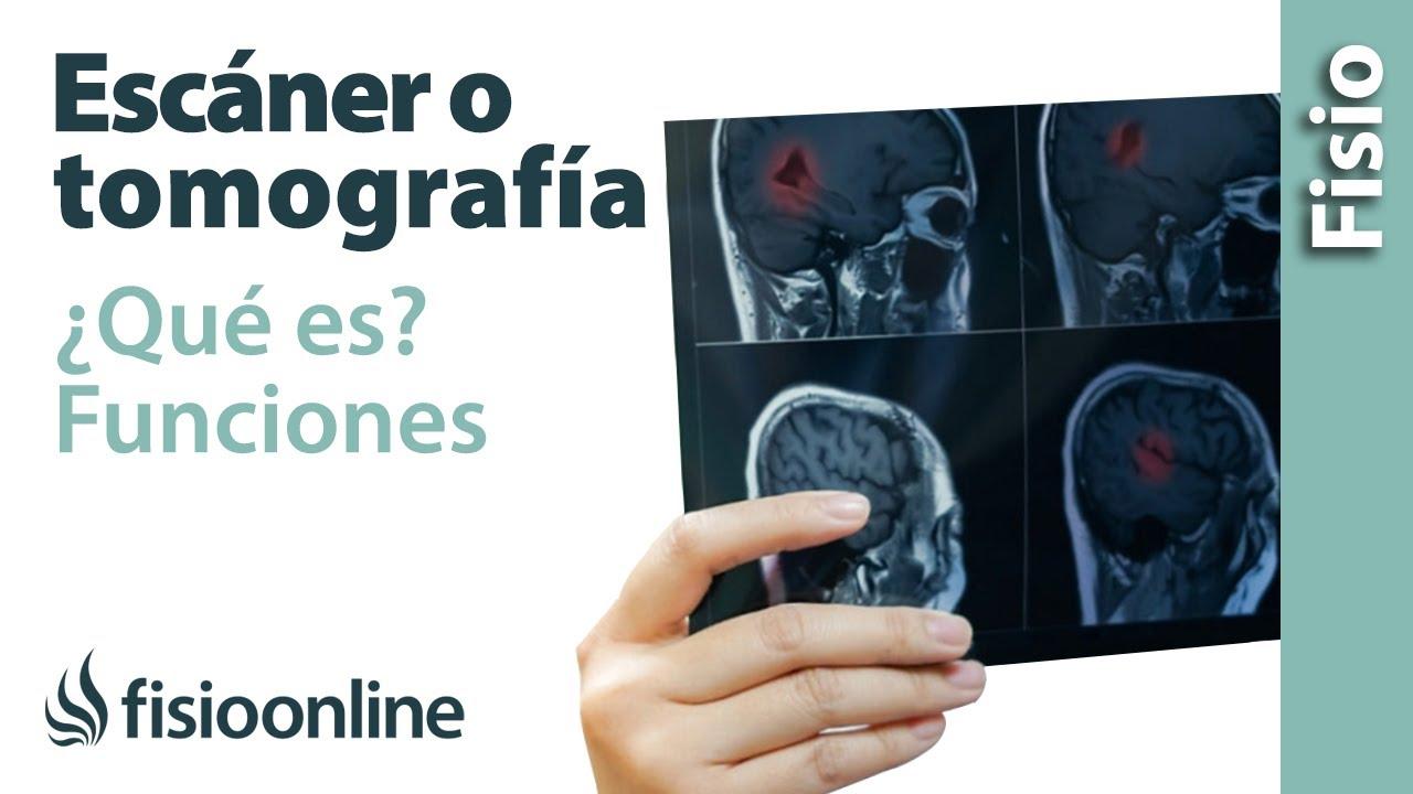 Escáner o tomografía - ¿Qué es y cómo funciona? - YouTube
