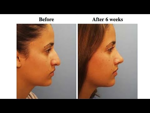 Dr Richard Clark The Rhinoplasty Surgery Doctor Sacramento Ca