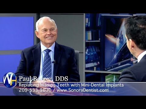 Replacing Missing Teeth with Mini-Dental Implants with Sonora, CA dentist Dr. Paul Berger