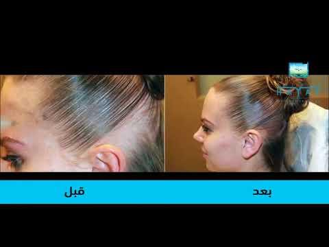 عملية زراعة الشعر للنساء في تركيا|طريقة العملية|تكلفة عملية زراعة الشعر دون حلاقة