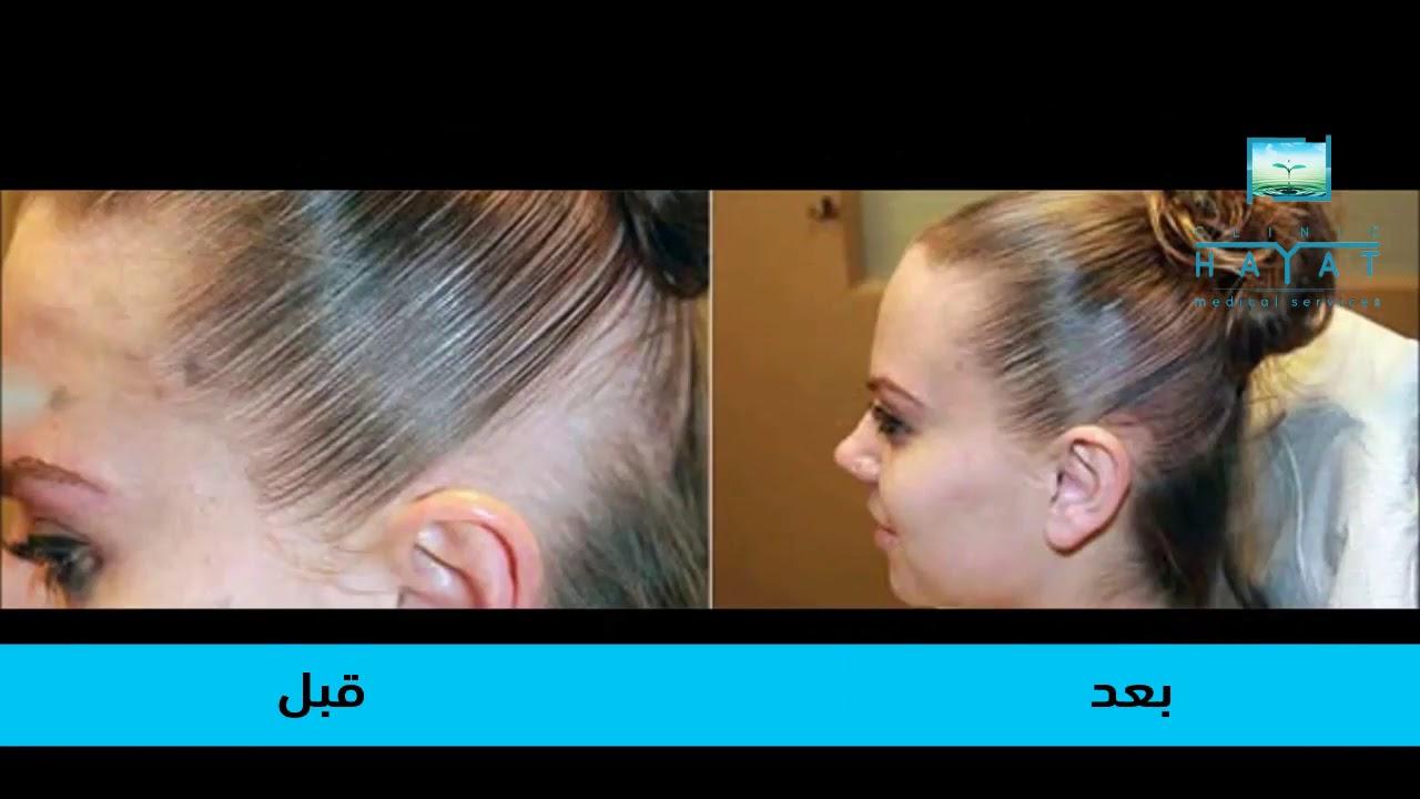 عملية زراعة الشعر للنساء في تركيا طريقة العملية تكلفة عملية زراعة
