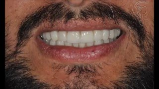 Full Mouth Reconstruction for worn down teeth