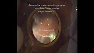 Хирургическое лечение отслоения сетчатки глаза (операция)(Видео операции (витрэктомии) при отслоении сетчатки глаза. Хирург - Ильюхин О.Е. (Московская Глазная Клиника)..., 2015-12-16T16:24:45.000Z)